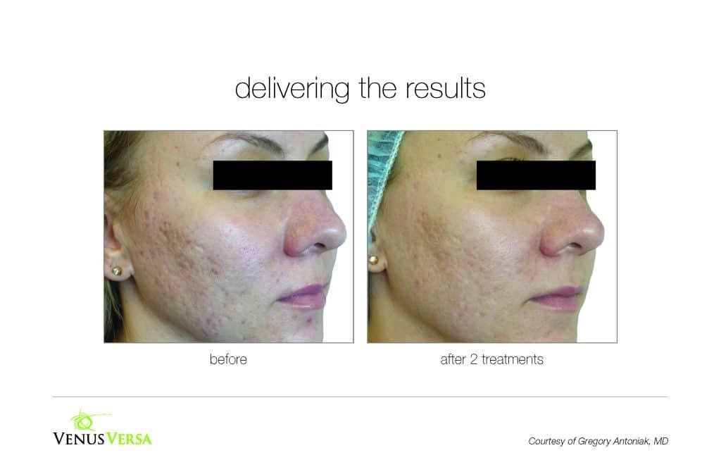 , Acne Treatments