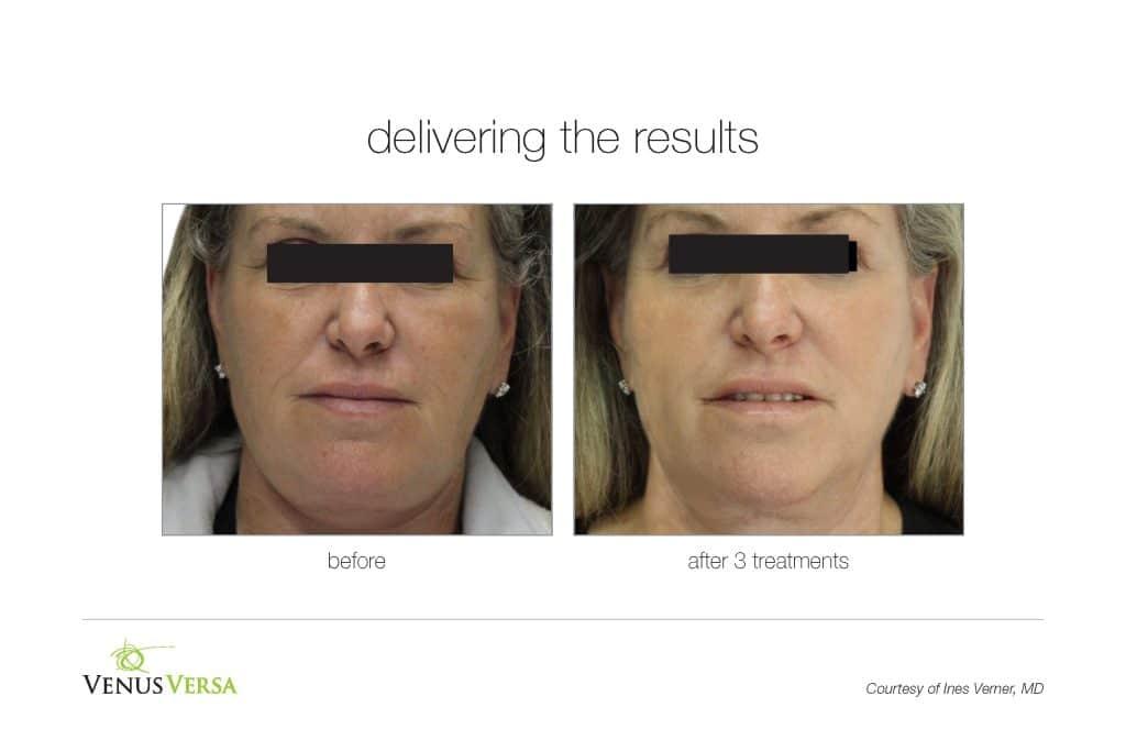 Skin Resurfacing, Skin Resurfacing / Wrinkle Reduction